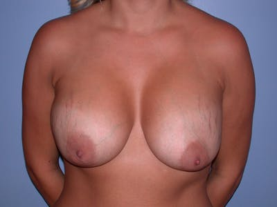 Breast Lift Gallery - Patient 40633455 - Image 1