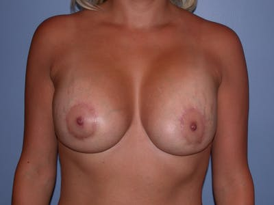 Breast Lift Gallery - Patient 40633455 - Image 2