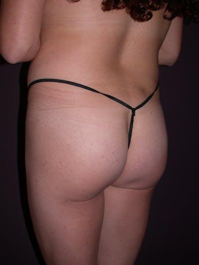 Brazilian Butt Lift Gallery - Patient 54027004 - Image 1