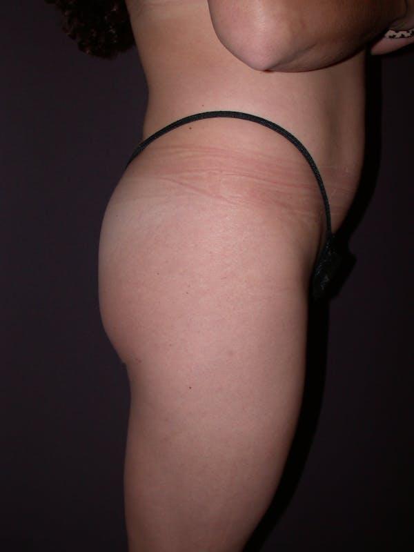 Brazilian Butt Lift Gallery - Patient 54027004 - Image 3