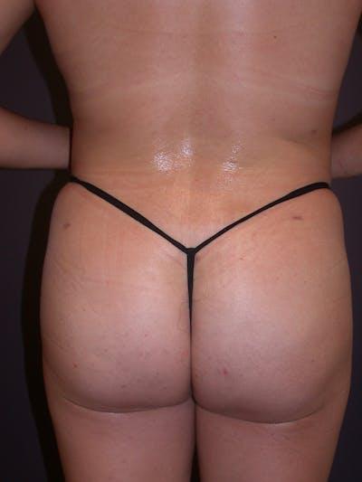 Brazilian Butt Lift Gallery - Patient 54027004 - Image 6