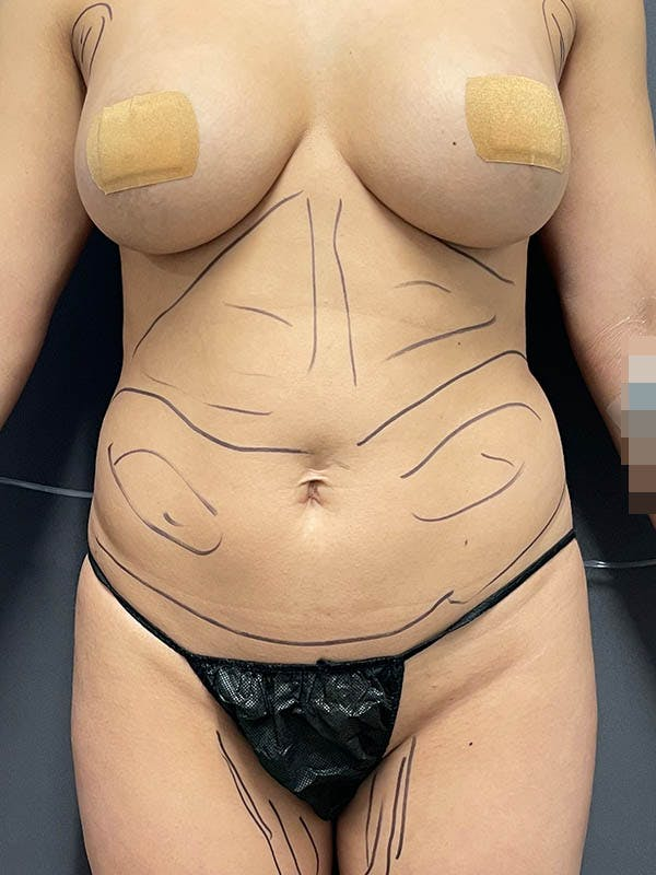 Liposuction Gallery - Patient 64989759 - Image 1