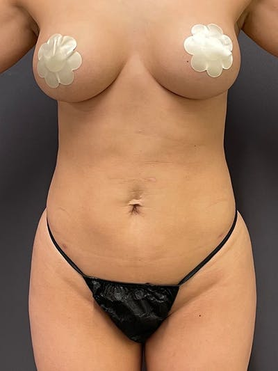 Liposuction Gallery - Patient 64989759 - Image 2