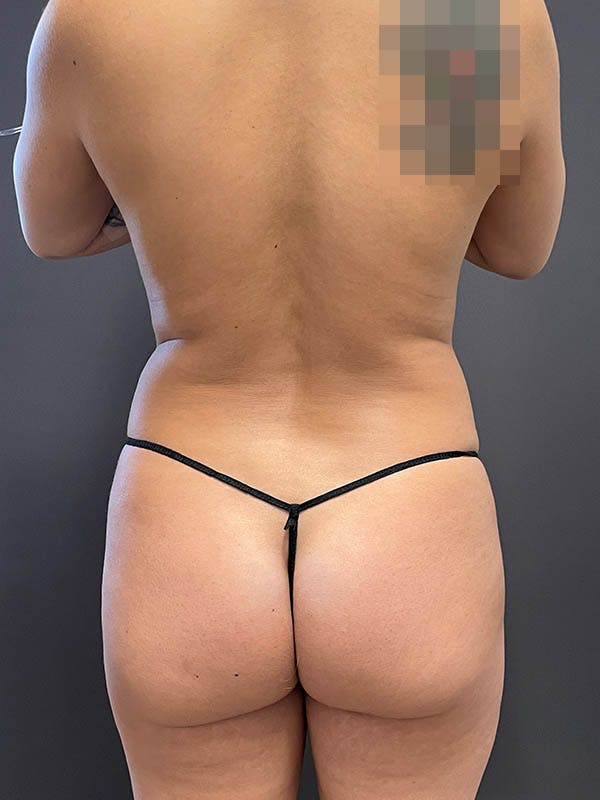 Liposuction Gallery - Patient 64989759 - Image 3