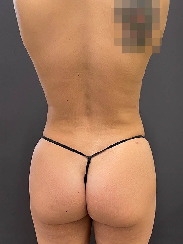 Liposuction Gallery - Patient 64989759 - Image 4