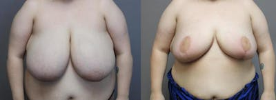 Breast Reduction Gallery - Patient 35841370 - Image 1