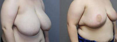 Breast Reduction Gallery - Patient 35841370 - Image 2