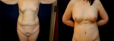 Mommy Makeover Gallery - Patient 38641940 - Image 1