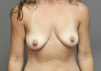Breast Augmentation Gallery - Patient 35841291 - Image 1