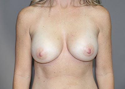 Breast Augmentation Gallery - Patient 35841291 - Image 2