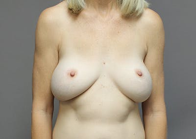 Breast Augmentation Gallery - Patient 35841290 - Image 1