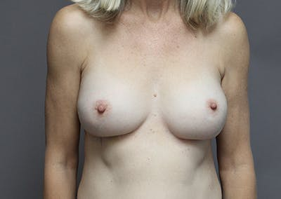 Breast Augmentation Gallery - Patient 35841290 - Image 2