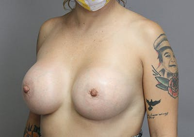 Breast Augmentation Gallery - Patient 35841292 - Image 2