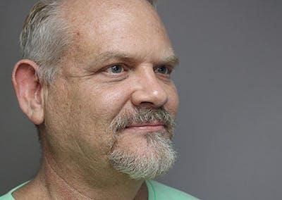 Facial Rejuvenation Gallery - Patient 48921800 - Image 1