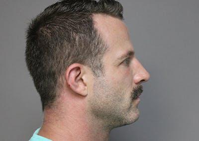Facial Rejuvenation Gallery - Patient 48923462 - Image 1