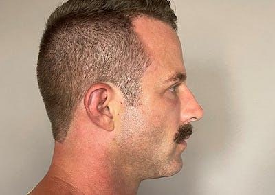 Facial Rejuvenation Gallery - Patient 48923462 - Image 2