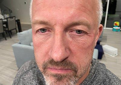 Facial Rejuvenation Gallery - Patient 48923463 - Image 1