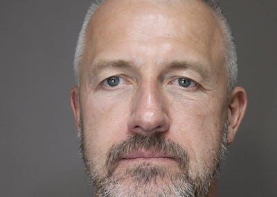 Facial Rejuvenation Gallery - Patient 48923463 - Image 2
