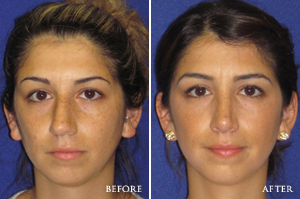 Rhinoplasty Philadelphia Best Nose Surgery Cherry Hill Nj