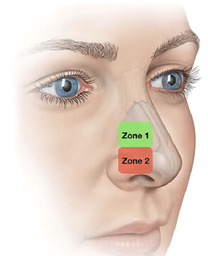 zone 1 and 2 of the nose