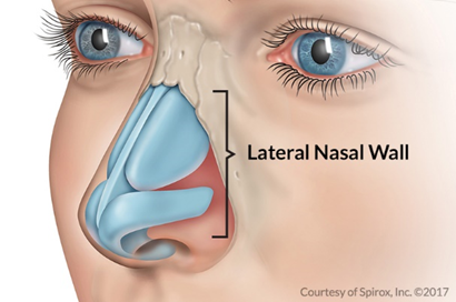 example of lateral nasal wall