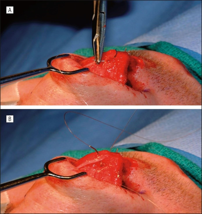 Suture Shaping Example
