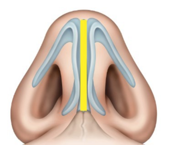 Droopy Ptotic Tip