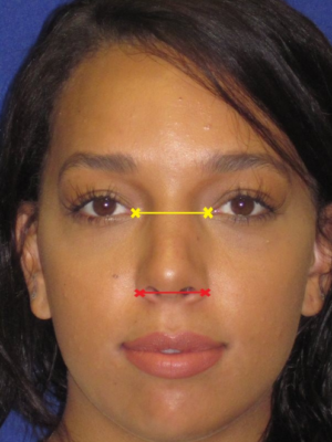 before rhinoplasty demonstration