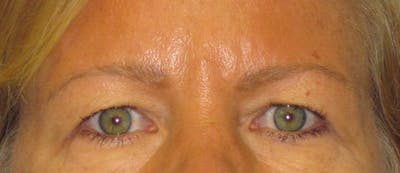 Blepharoplasty Gallery - Patient 4882943 - Image 1