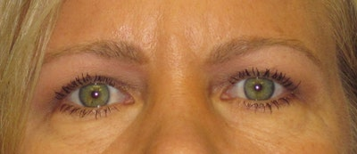 Blepharoplasty Gallery - Patient 4882943 - Image 2