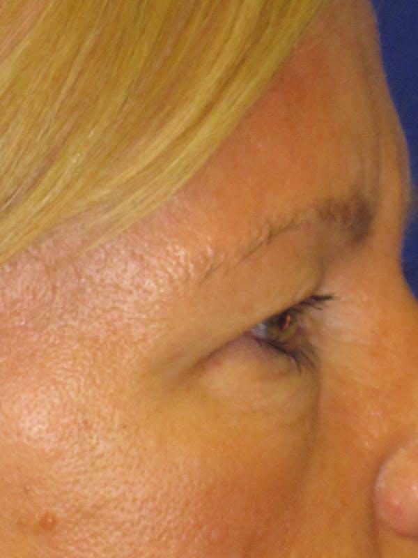 Blepharoplasty Gallery - Patient 4882943 - Image 5