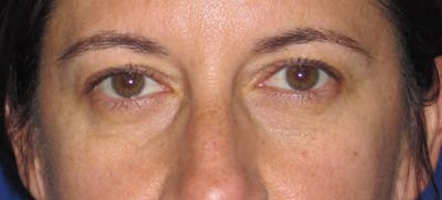 Blepharoplasty Gallery - Patient 4883043 - Image 1