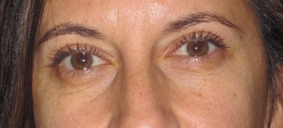 Blepharoplasty Gallery - Patient 4883043 - Image 2
