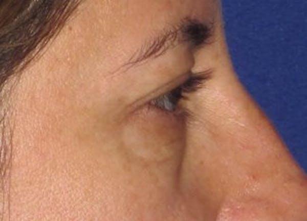 Blepharoplasty Gallery - Patient 4883043 - Image 5
