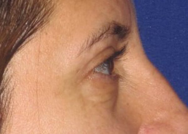 Blepharoplasty Gallery - Patient 4883043 - Image 6