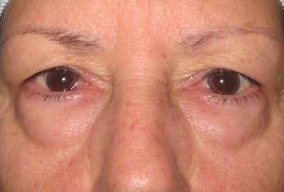 Blepharoplasty Gallery - Patient 4883044 - Image 1