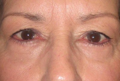 Blepharoplasty Gallery - Patient 4883044 - Image 2