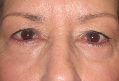 Blepharoplasty Gallery - Patient 4883044 - Image 2