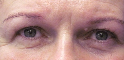 Blepharoplasty Gallery - Patient 4883045 - Image 1
