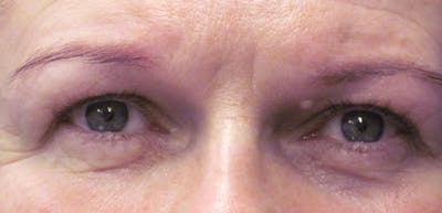 Blepharoplasty Gallery - Patient 4883045 - Image 1