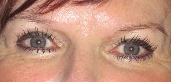 Blepharoplasty Gallery - Patient 4883045 - Image 2