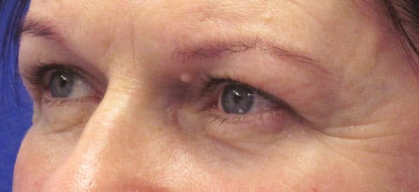 Blepharoplasty Gallery - Patient 4883045 - Image 3