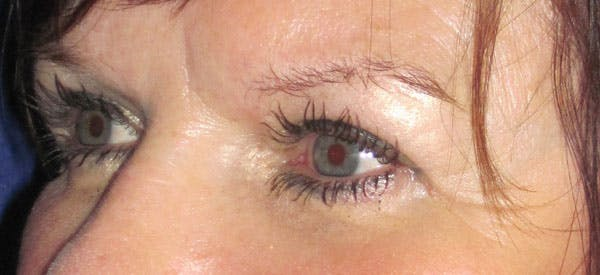 Blepharoplasty Gallery - Patient 4883045 - Image 4