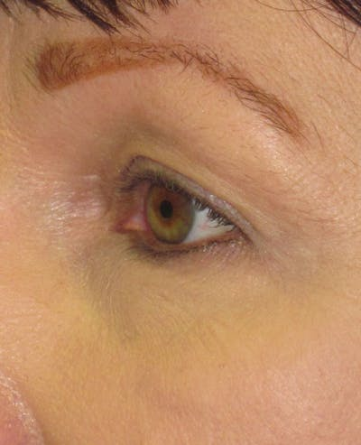Blepharoplasty Gallery - Patient 4883046 - Image 1