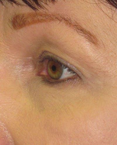 Blepharoplasty Gallery - Patient 4883046 - Image 1