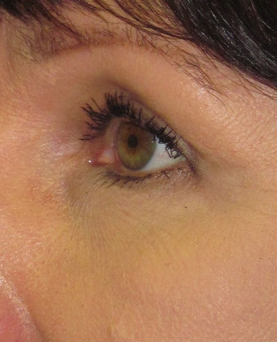 Blepharoplasty Gallery - Patient 4883046 - Image 2