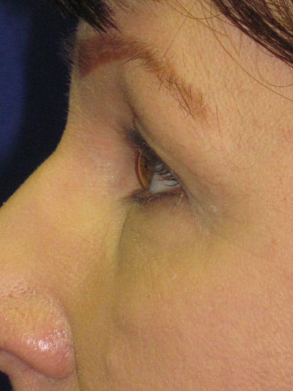 Blepharoplasty Gallery - Patient 4883046 - Image 3