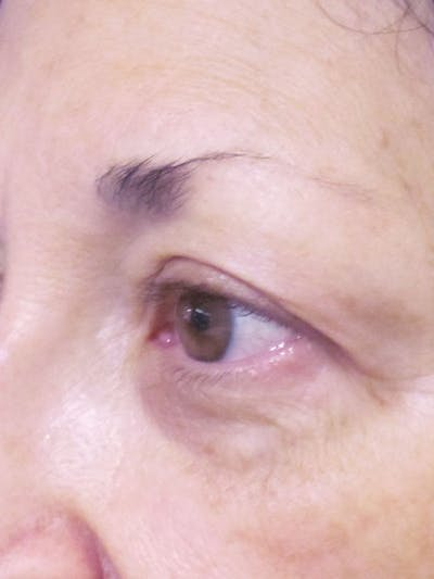 Blepharoplasty Gallery - Patient 4883051 - Image 1