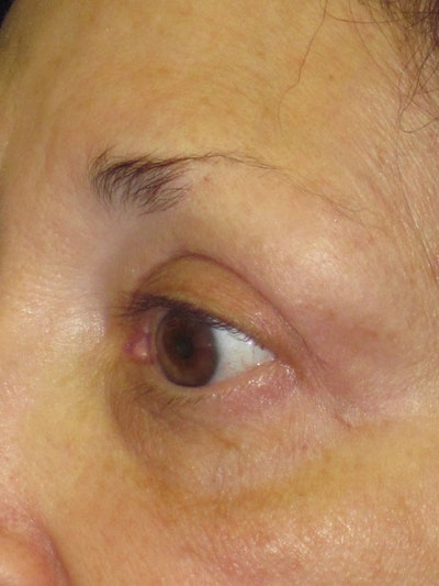 Blepharoplasty Gallery - Patient 4883051 - Image 2