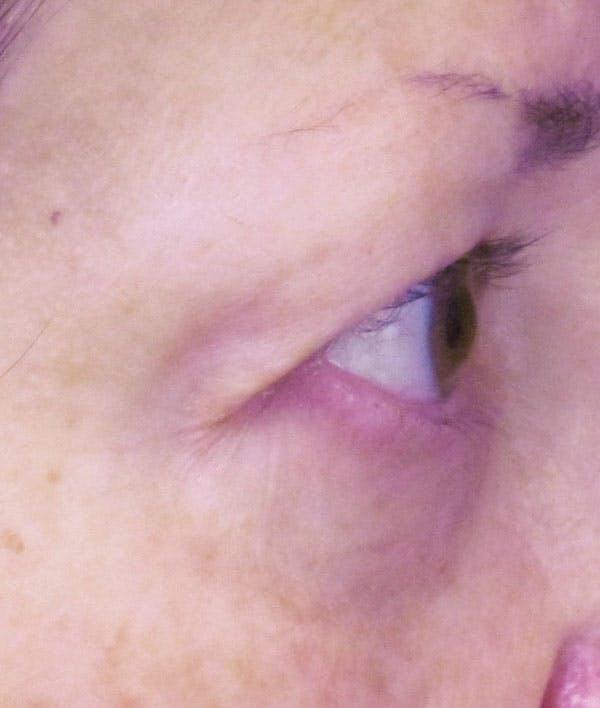 Blepharoplasty Gallery - Patient 4883051 - Image 3